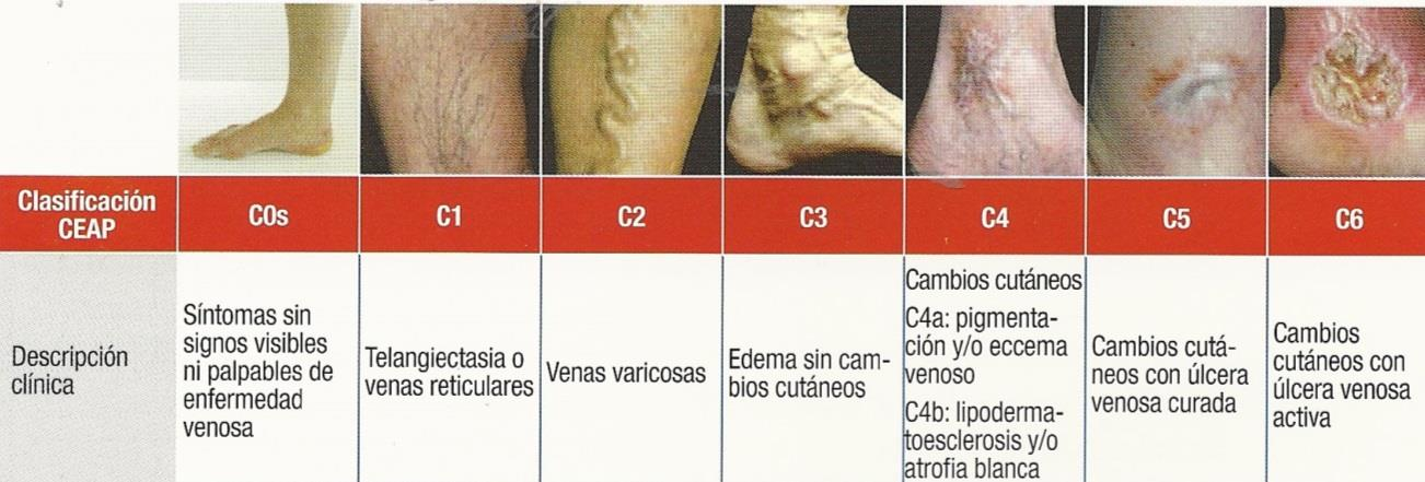 La tromboflebitis de las venas superficiales el cuadro clínico
