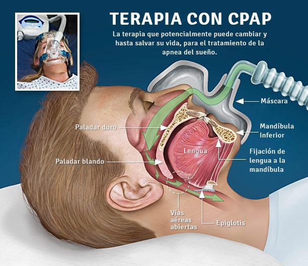 Apnea-Hipopnea del sueño, un problema que debes prevenir y cuidar ...